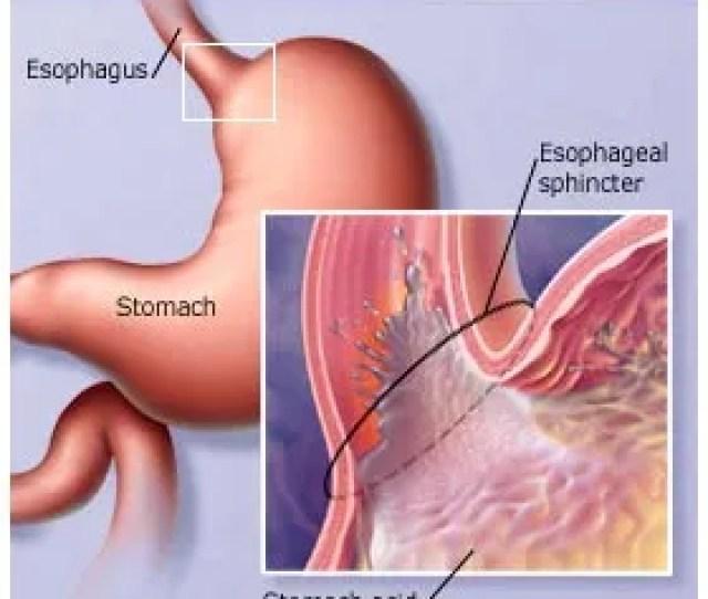 Digestive Diseases Heartburn And Gastroesophageal Reflux Disease Gerd