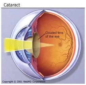 Picture of Cataract of the Eye