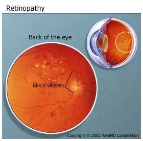 Picture of Diabetic Retinopathy of the Eye