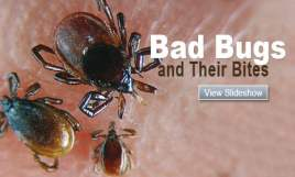 Dust Mites Bites Vs Bed Bugs Bites Images & Pictures - Becuo