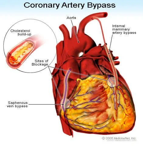 https://i1.wp.com/images.medicinenet.com/images/illustrations/coronary_artery_bypass.jpg