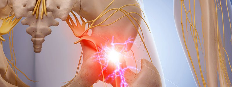 Lower Back Pain Quiz: Relief, Causes & Stretches
