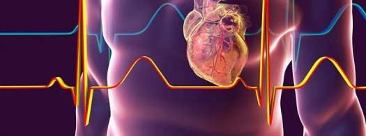 After a Heart Attack, a Joint Effort to Lose Weight Works Best 2