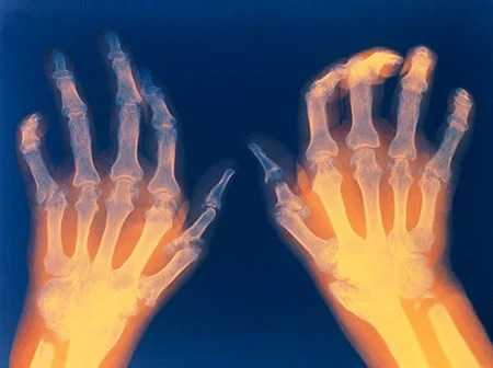 Picture of hands affected by rheumatoid arthritis. Notice the joint deformity in the fingers.