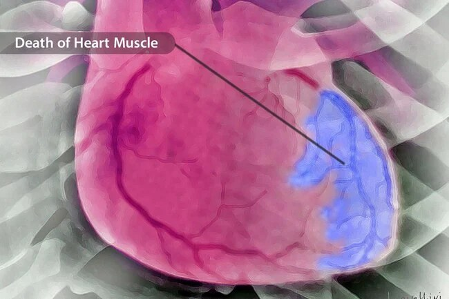 Unlike cardiac arrest, your heart does not usually stop during a heart attack.