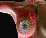 Breast Cancer Diagnosis and Treatment