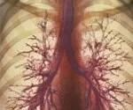 COPD: Symptoms, Causes  Treatment
