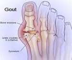 Gout: See  Learn About Gouty Arthritis Attacks