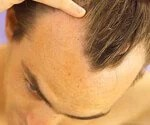 Hair and Scalp:What They Say About Your Health