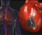View the Heart Disease Slideshow