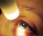 Pink Eye (Conjunctivitis):Learn About This Common Eye Condition