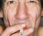View How Smoking Affects Your Looks and Life Slideshow Pictures