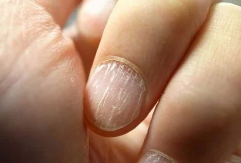 Low iron causes hair loss, weakness, brittle nails, and other symptoms.