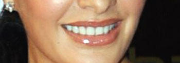 Jacqueline Fernandez Nice Lip Smile Still