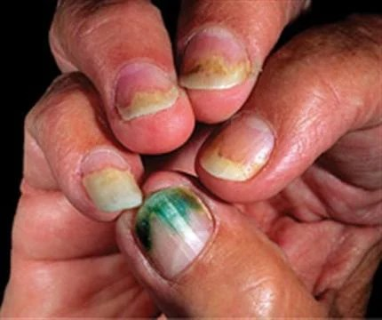 Nail Fungus From Acrylic Nails Pictures Pic