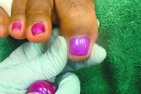 You May Be Surprised To Learn That Scotch Tape Is A Key Ingrent When Repairing Badly Damaged Toenails Athena Elliott The Owner Of Spathena In Houston