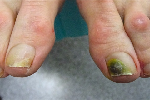 A Day In The Life Of Nail Doctor Health Nails Acrylic Fungus Causes