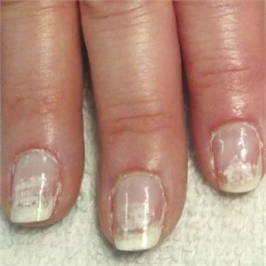 Most Of The Time They Re Not Letting Nails Soak For A Long Enough And When Go To Remove Gel Pry Or L It Off Notes Bryson
