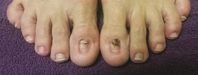 Nails By Maureen Gleason Before