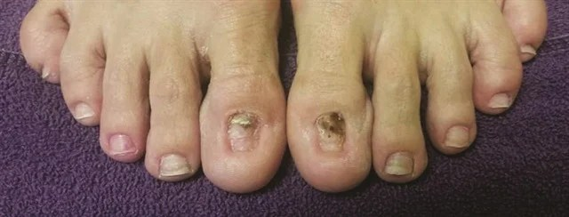 These Toenails Belong To A Woman Who Is Recovering From Fungal Nail Infection She Took Medication And Had Most Of The Removed
