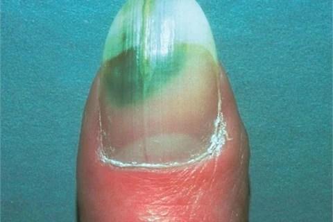 Toenail Fungus Acrylic Nails