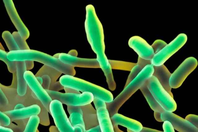 Everything you need to know about the hospital food listeria outbreak