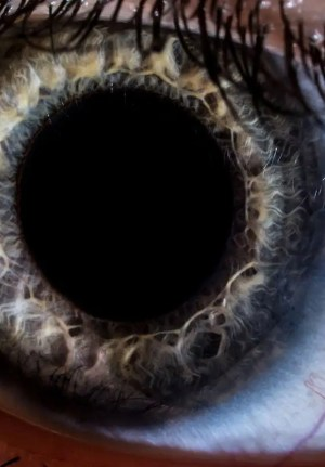 A dilated pupil