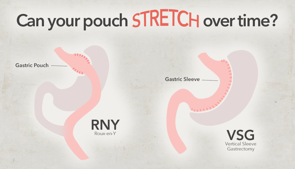 Does Pouch Size Matter Amp Will The Stomach Stretch After Bariatric Surgery ObesityHelp