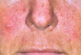 common-adult-skin-problems-s1-photo-of-freckled-young-woman Skin Problems