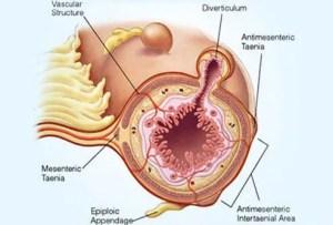 Diverticulitis (Diverticulosis) Symptoms, Diet, Treatment