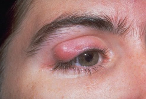 mon eye problems and infections