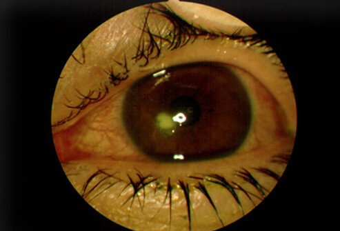 A Patient Suffering From Corneal Ulcer Shows White Area In The Cornea