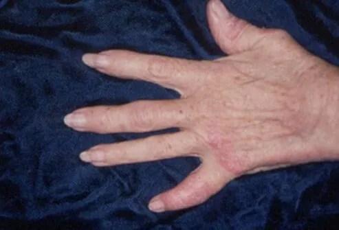 Psoriatic Arthritis Symptoms, Treatment, Images