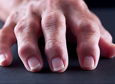 What Causes Psoriatic Arthritis?