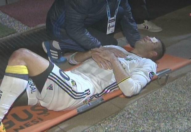 Van Persie suffers gruesome eye injury in Fenerbahce match