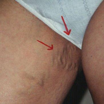 crema împotriva edemei și a varicelor venicile varicoase pericole