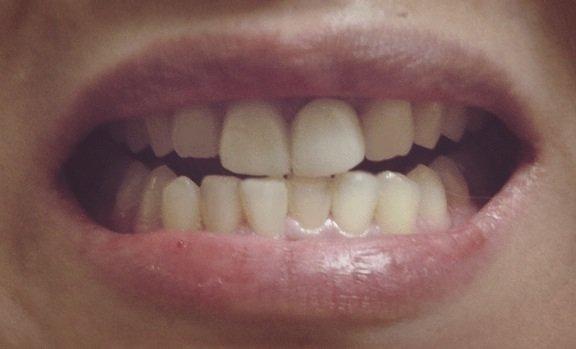 【門牙·假牙】門牙假牙 – TouPeenSeen部落格