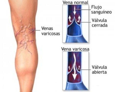varicoză în operațiunea pelvis mică varicoză decât tratați vânătăile