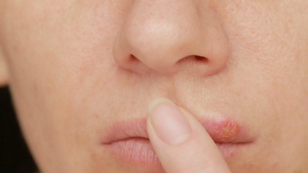 Herpes Between Lip And Nose   Amtmakeup co