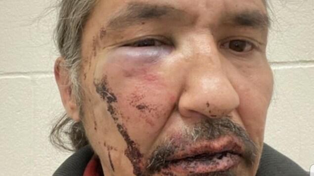 Le chef d'une Première Nation albertaine accuse la GRC de brutalité