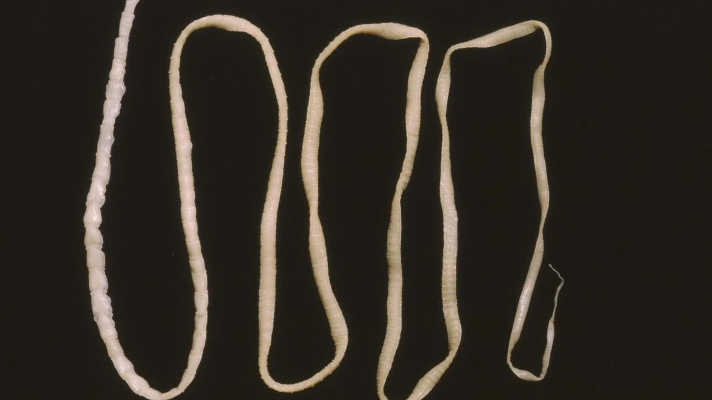 Does How Tapeworm Look
