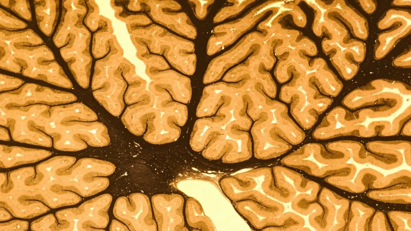 What Are The Two Main Parts Of The Nervous System