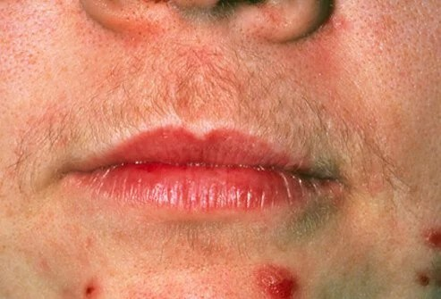 Polycystic ovary syndrome (PCOS) causes excessive body hair and acne.