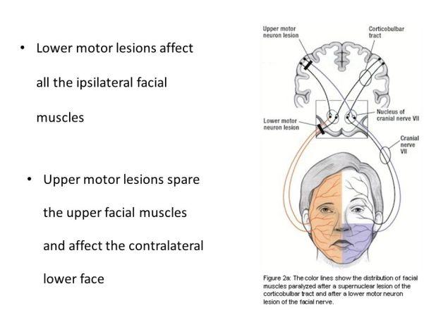 Upper vs lower motor neuron lesion face for Lower motor neuron diseases