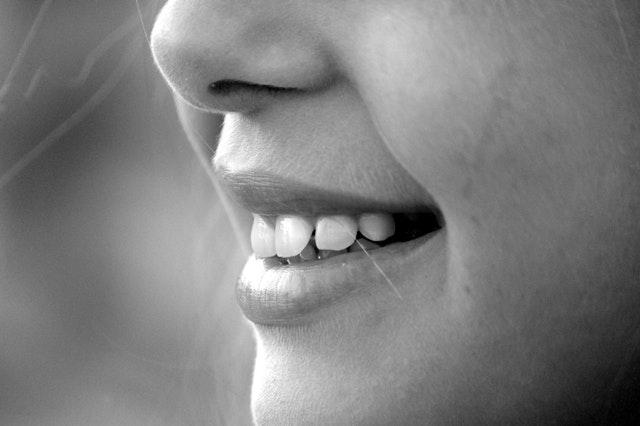 علاج بروز الأسنان الأمامية بالاعشاب
