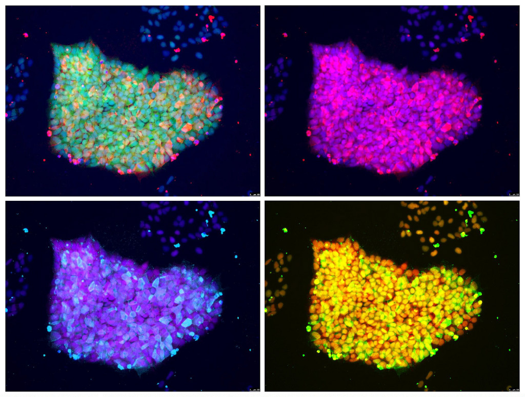 Genetically Engineered Fluorescent Induced Pluripotent Stem Cells (iPSC). Credit: National Institute of Arthritis
