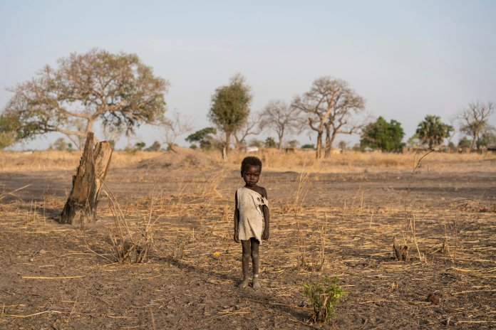 In this photo taken Friday, March 10, 2017, a boy named Giel wears a small white bracelet on his ankle indicating that he's just finished treatment at an outpatient therapeutic program, as he stands on the outskirts of Udhaba, near Aweil, in South Sudan. (Mackenzie Knowles-Coursin/UNICEF via AP)