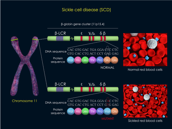 The Genetics Of Sickle Cell Disease -