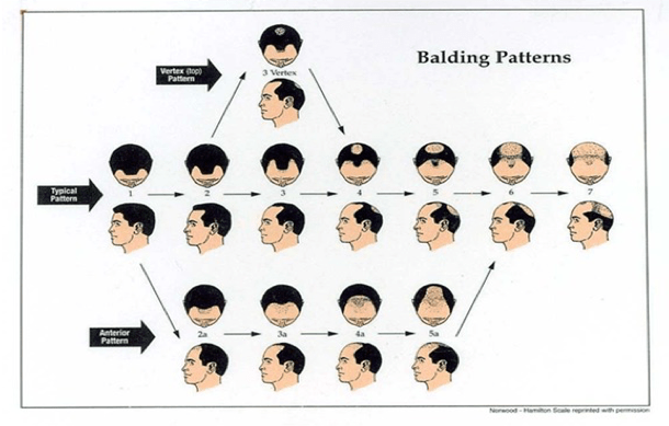 The Norwood Scale of hair loss