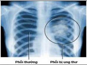 ung thu phoi115 Ung thư phổi: 80% nguyên nhân từ hút thuốc lá